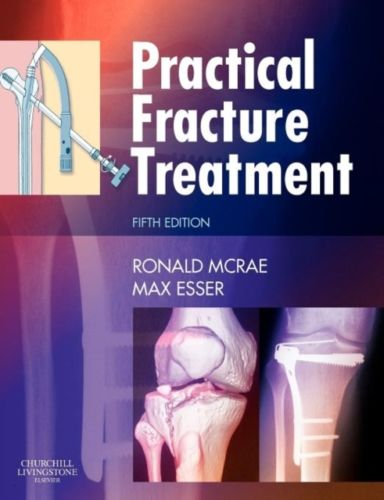 Practical Fracture Treatment 5 ED by Max Esser 0443068763