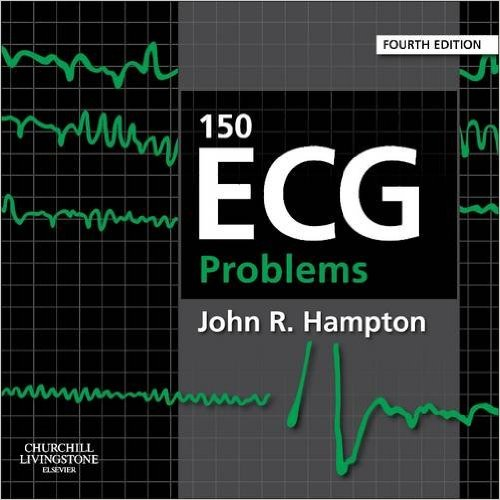 150 ECG Problems 4 ED by John R Hampton 0702046450