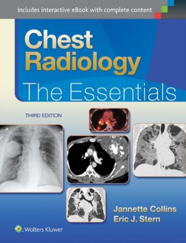 Chest Radiology 3 ED by Janette Collins 1451144482 US ED