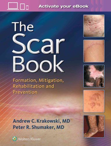 The Scar Book 1 ED by Peter R Shumaker 149632238X US ED