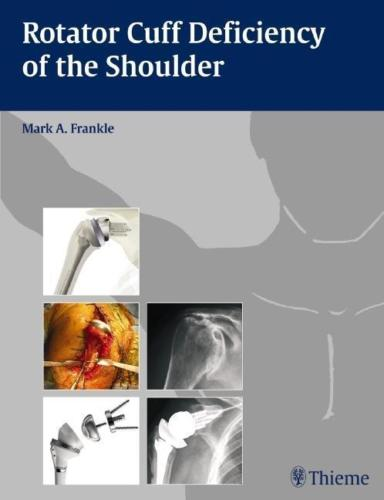 Rotator Cuff Deficiency of the Shoulder 1 ED by Mark A Frankle 1588905063 US ED