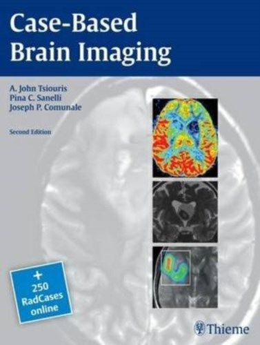 Case Based Brain Imaging 2 ED by A John Tsiouris 1604069538 US ED
