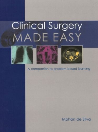 Clinical Surgery Made Easy 1 ED by Mohan De Silva 1903378656 US ED