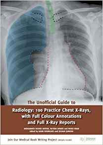 The Unofficial Guide to Radiology 1 ED by Nihad Khan 1910399019 US ED