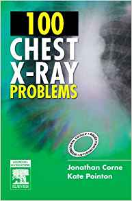 100 Chest X Ray Problems by Jonathan Corne 0443103771