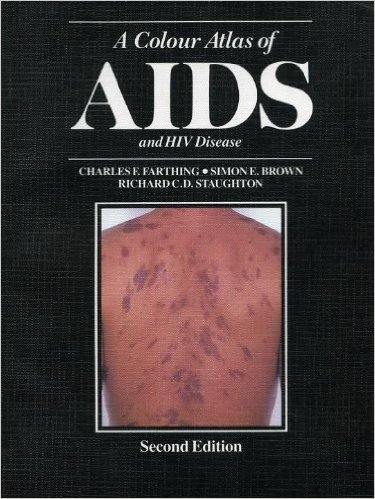 A Colour Atlas of Aids and Hiv Disease 2 ED by Charles F Farthing 0723409951